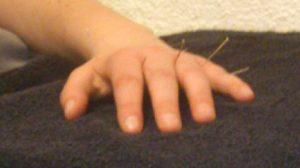 Dystonie hand ná acupunctuur